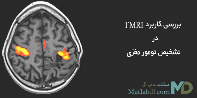 بررسی کاربرد FMRI در تشخیص تومور مغزی