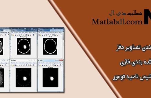 قطعه بندی تصاویر MRI مغز با خوشه بندی فازی برای تشخیص ناحیه تومور