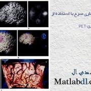 مقاله مروری تشخیص بیماری صرع با استفاده از تصویربرداری PET